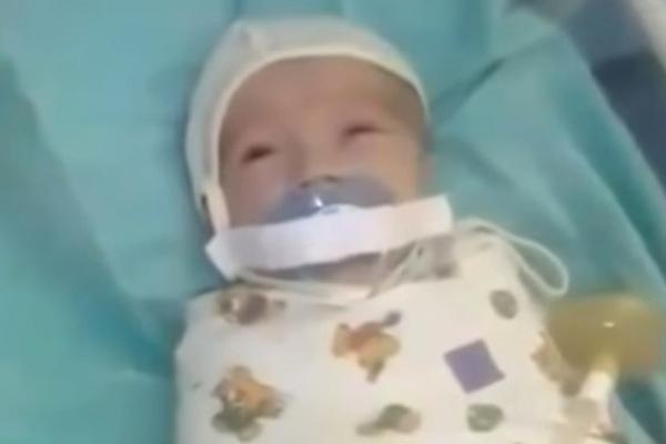 Главврача перинатального центра уволили из-за заклеенного младенцу рта
