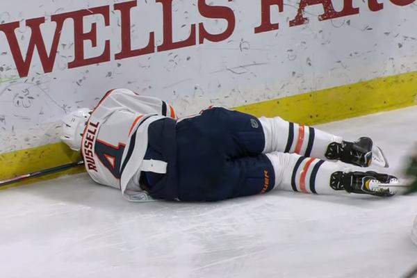 Игрок НХЛ ударился лицом о штангу