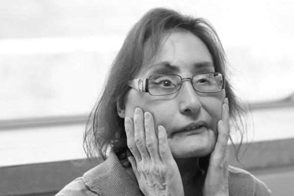Пережившая пересадку лица американка умерла