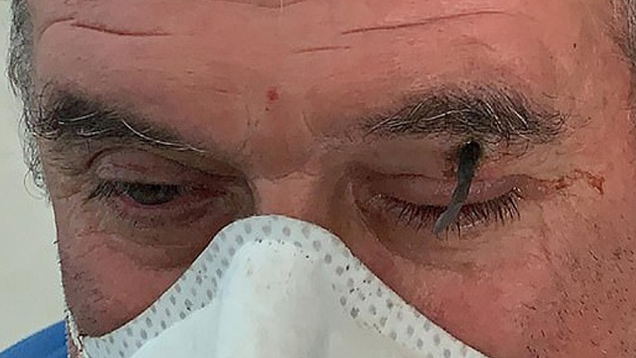 Мужчина случайно вогнал гвоздь в собственное лицо