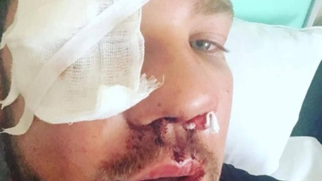 Избитый тремя дагестанцами в метро москвич раскрыл подробности нападения